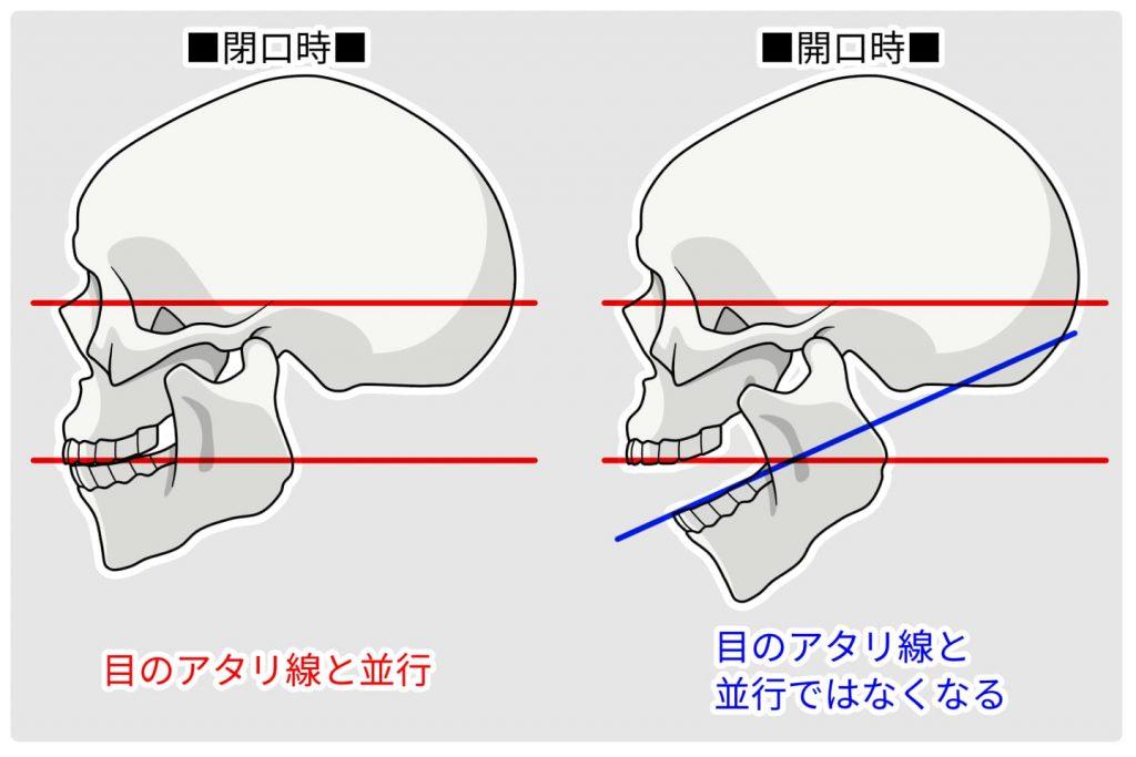 歯とあごの関係の図解イラスト